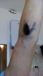 From first day of stem cell collection.  That's what happens when 800,000 stem cells course through your veins!!  :)