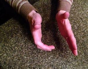 hand spasticity